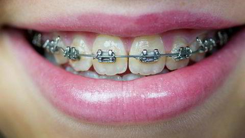 Mange barn skal fortsatt få støtte til tannregulering, men regjeringen vil ikke lenger gi støtte til regulering som i hovedsak er av kosmetisk eller estetisk karakter.