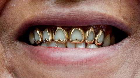 Gull i tennene er bare et av mange bruksområder for det edle metallet, som også brukes i blant annet smykker og elektronikk.