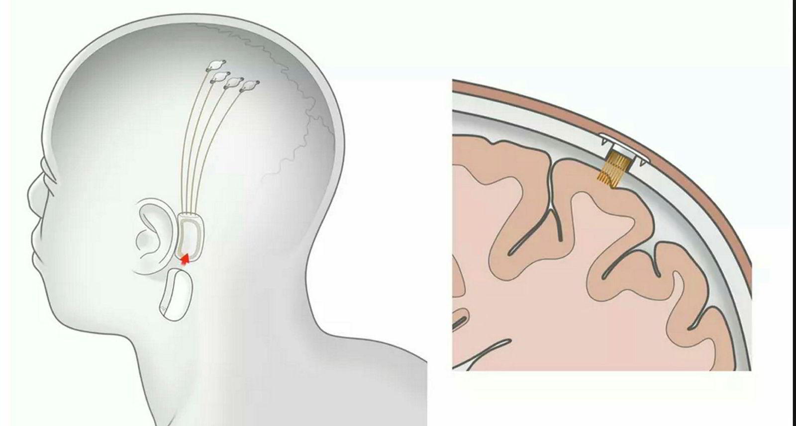 Neuralinks hjerneimplantat har en utvendig og en innvendig del. De innvendige delene skal være langt tryggere for brukeren enn dagens løsninger.
