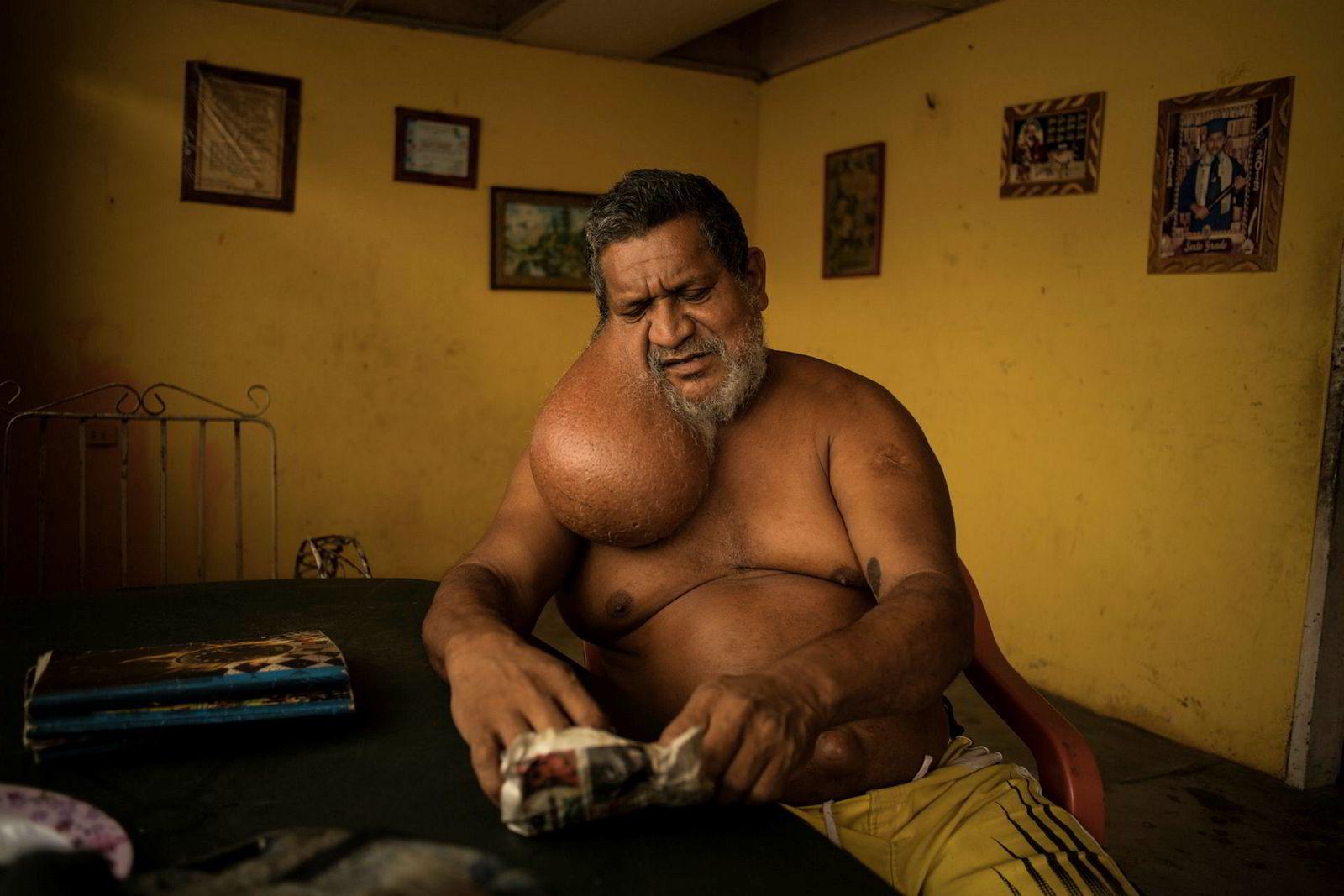 Økonomien har gått til helvete, det finnes ikke kontanter. Bare gull, sier mekanikeren Enrique Pacheco som i mange år jobbet i gullgruvene. I 12 år har han levd med en infeksjon og svulst i ansiktet som kunne vært fjernet med kirurgi. Men det cubansk-drevne sykehuset i Tumeremo har ikke utstyr eller medisiner til å hjelpe ham.