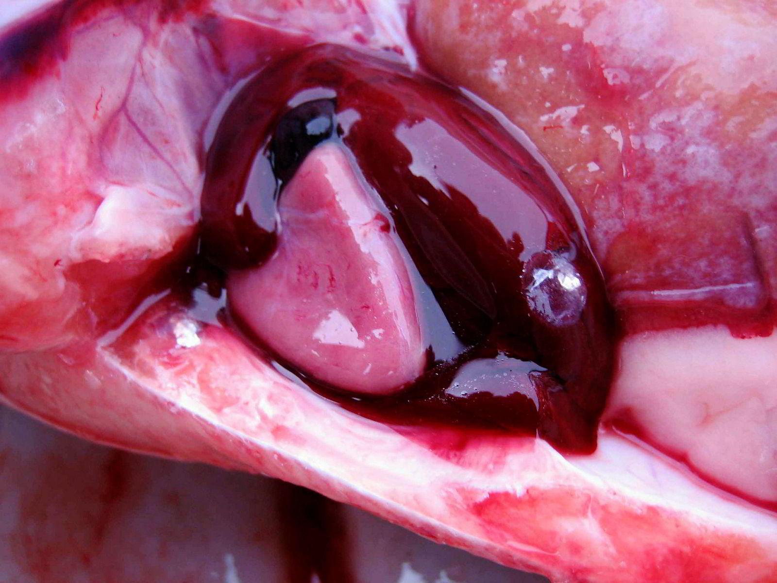 Viruset CMS gjør at fisken får en betennelse som gjør hjerteveggen så tynn og skjør at hjertet til slutt sprekker. Det skjer gjerne når fisken blir stresset i forbindelse med lusebehandling.