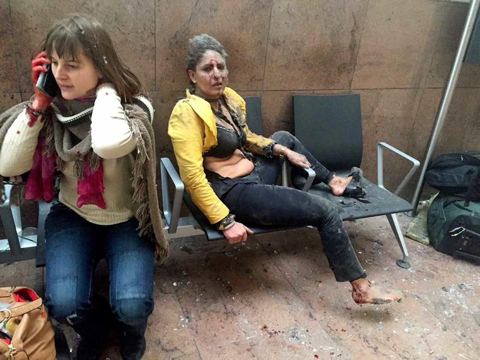 To skadede kvinner på flyplassen Zaventem etter eksplosjonen tirsdag. Foto: Ketevan Kardava/ Georgian Public Broadcaster via AP/NTB Scanpix