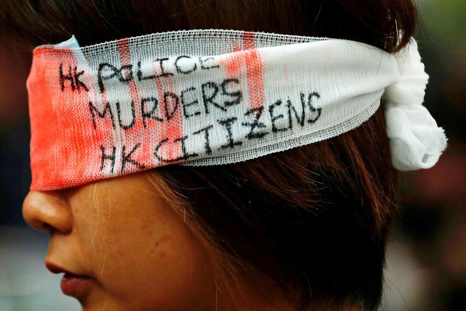 Politiet anklages for unødvendig bruk av vold mot demonstrantene i Hongkong. En kvinne risikerer å bli blind på det ene øyet etter angrep fra politiet under en demonstrasjon, ifølge flere medier, deriblant South China Morning Post.