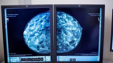 Aleris tilbyr kvinner gratis medlemskap i «Aleris røntgen mammovakt».